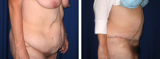 Post Gastric Bypass